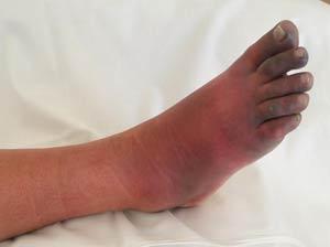 Стельки и обувь при псориатическом артрите