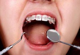 Детская стоматология. Памятка для родителей
